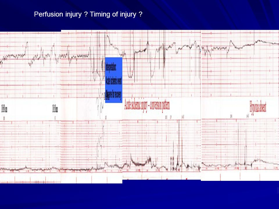 Perfusion injury Timing of injury