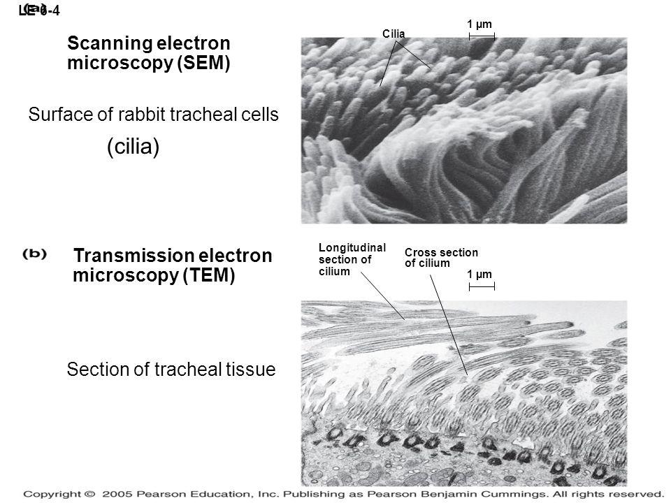 (cilia) Scanning electron microscopy (SEM)