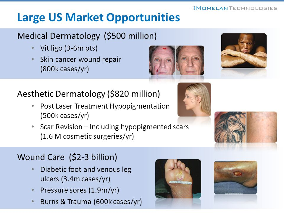 Large US Market Opportunities