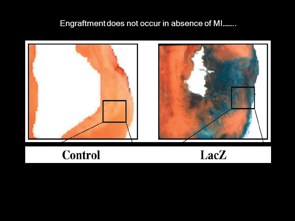 Engraftment does not occur in absence of MI……..