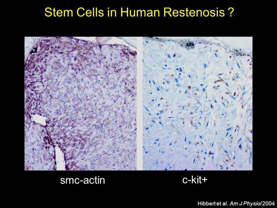 Stem Cells in Human Restenosis
