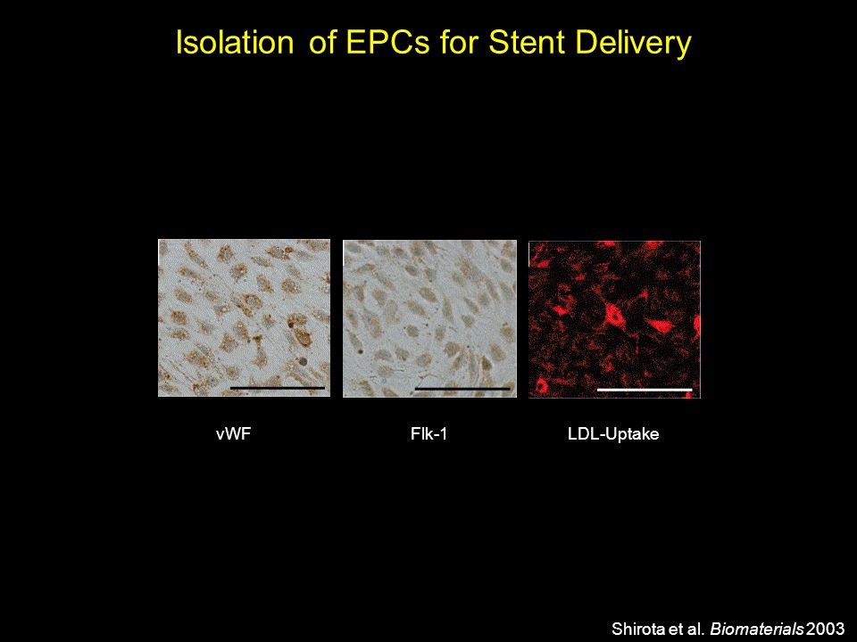 Isolation of EPCs for Stent Delivery