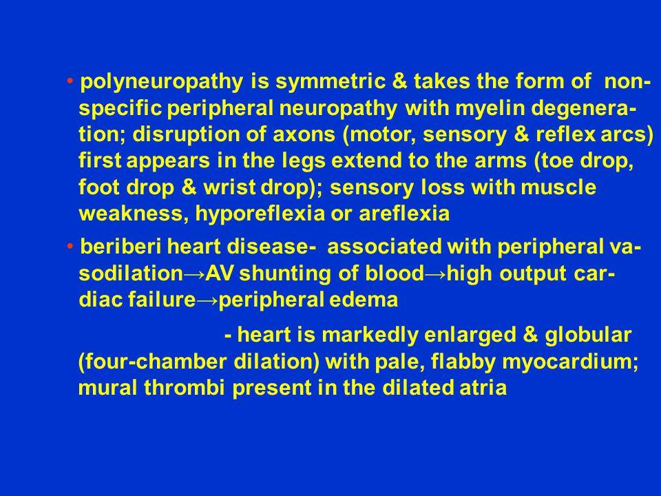 polyneuropathy is symmetric & takes the form of non-