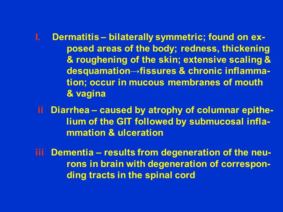 Dermatitis – bilaterally symmetric; found on ex-