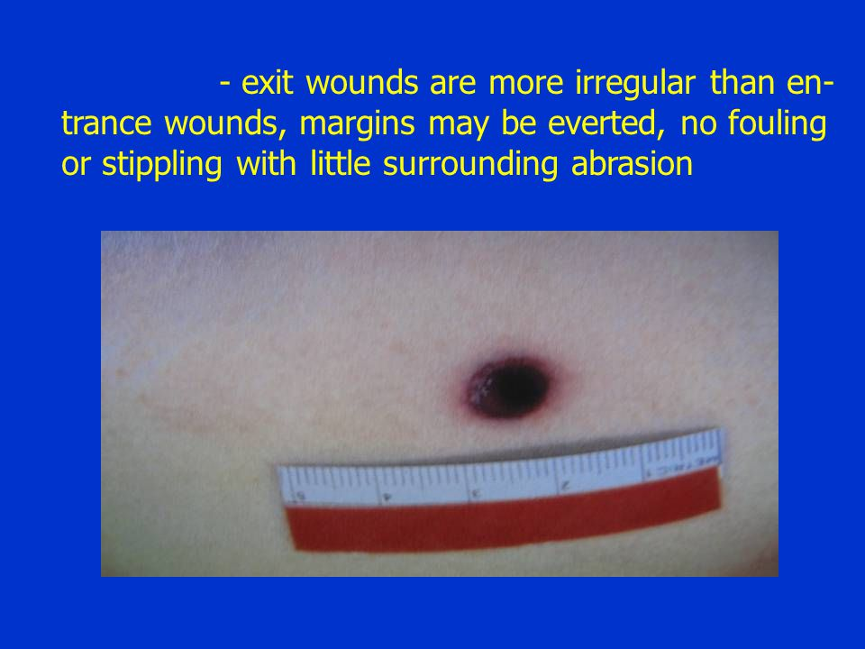 - exit wounds are more irregular than en-