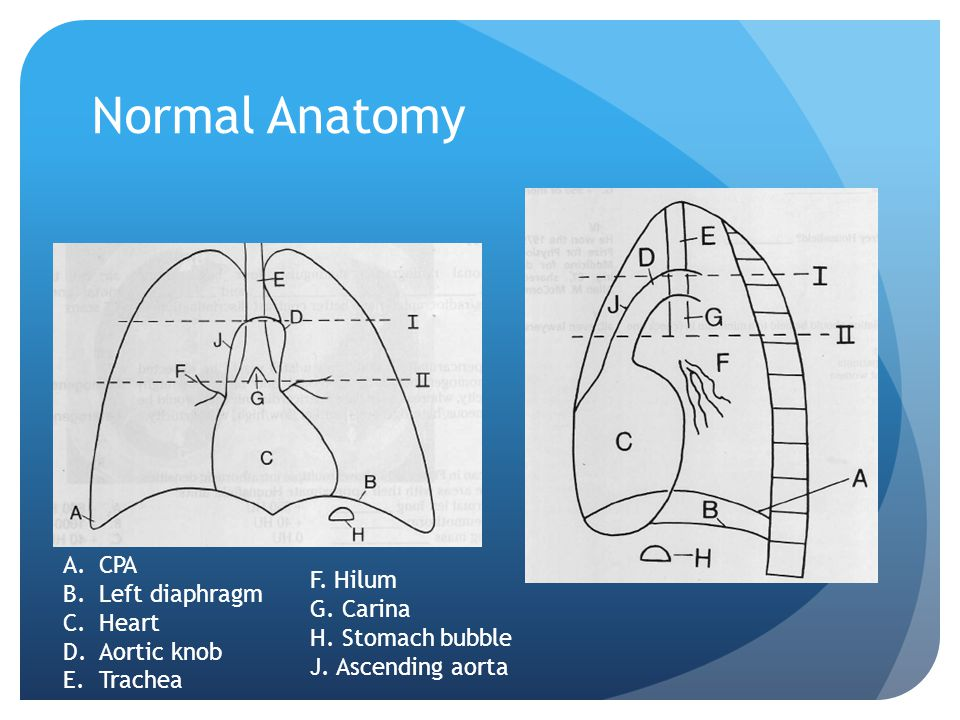 Normal Anatomy CPA Left diaphragm Heart Aortic knob Trachea F. Hilum