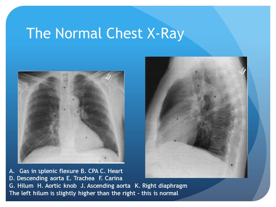 The Normal Chest X-Ray Gas in splenic flexure B. CPA C. Heart