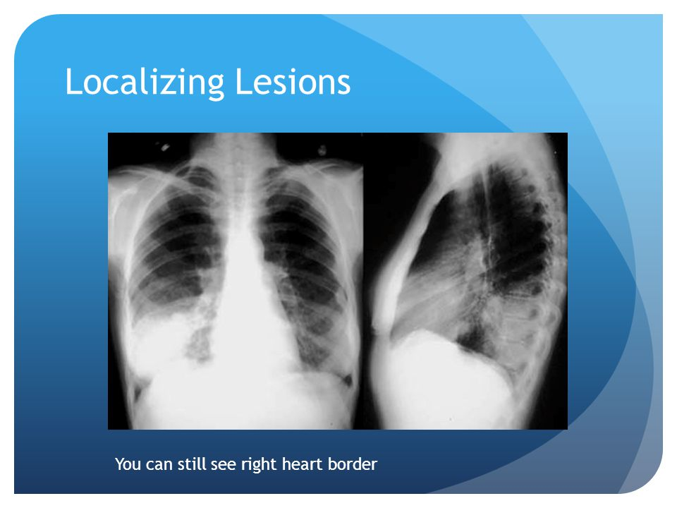 Localizing Lesions You can still see right heart border