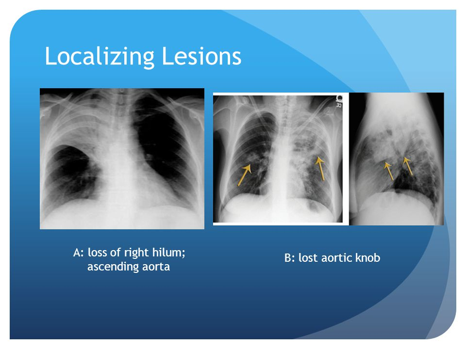 Localizing Lesions A: loss of right hilum; B: lost aortic knob