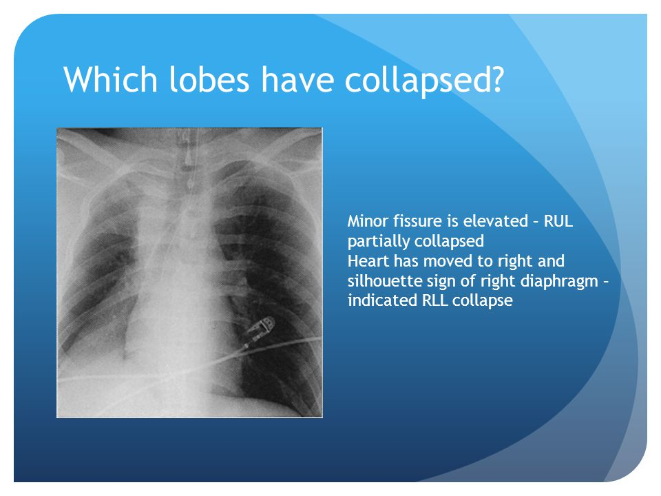 Which lobes have collapsed