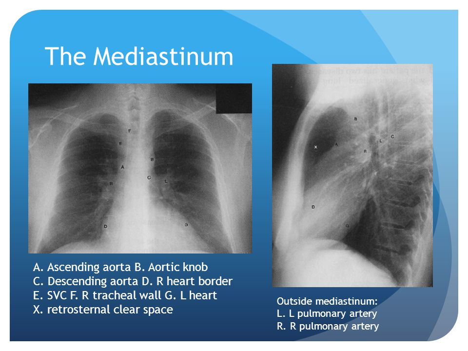 The Mediastinum A. Ascending aorta B. Aortic knob