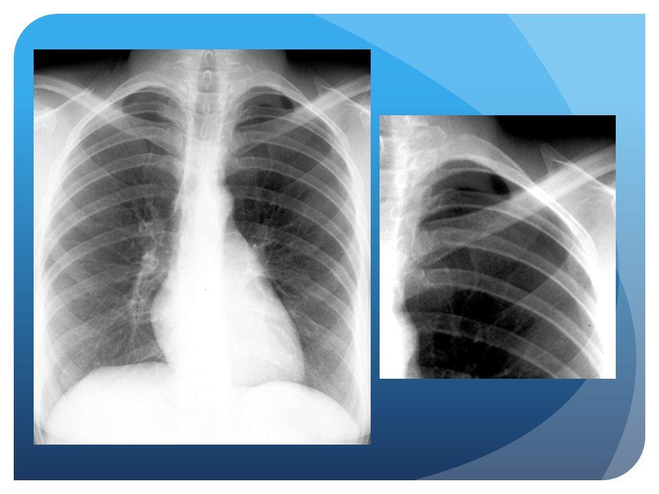 Subtle pneumothorax