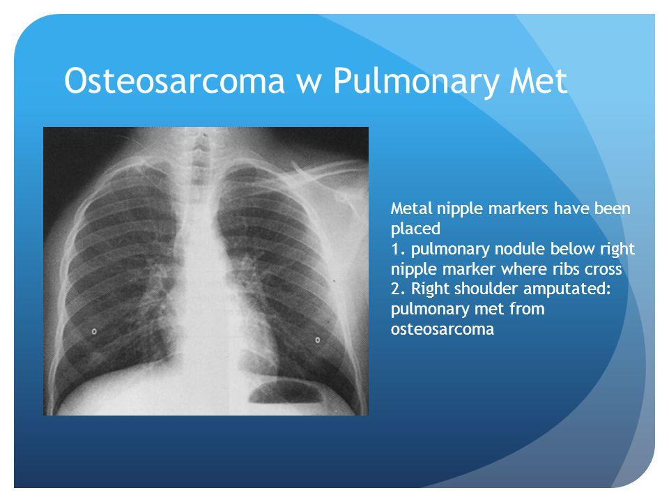 Osteosarcoma w Pulmonary Met