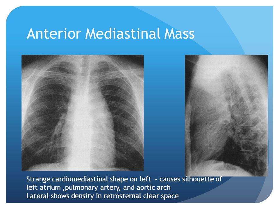 Anterior Mediastinal Mass