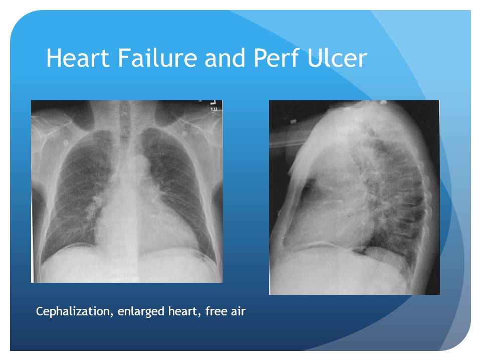 Heart Failure and Perf Ulcer