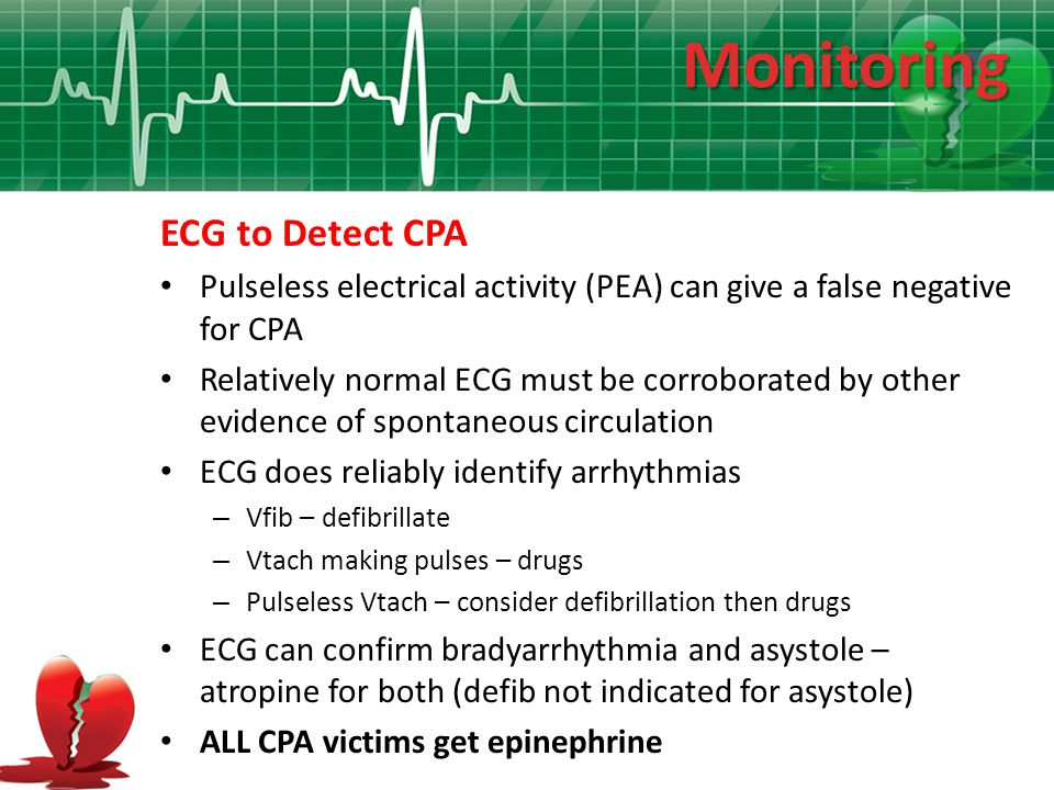 Monitoring ECG to Detect CPA