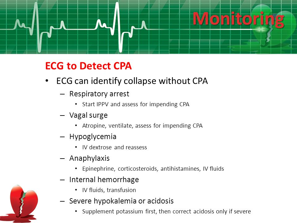 Monitoring ECG to Detect CPA ECG can identify collapse without CPA