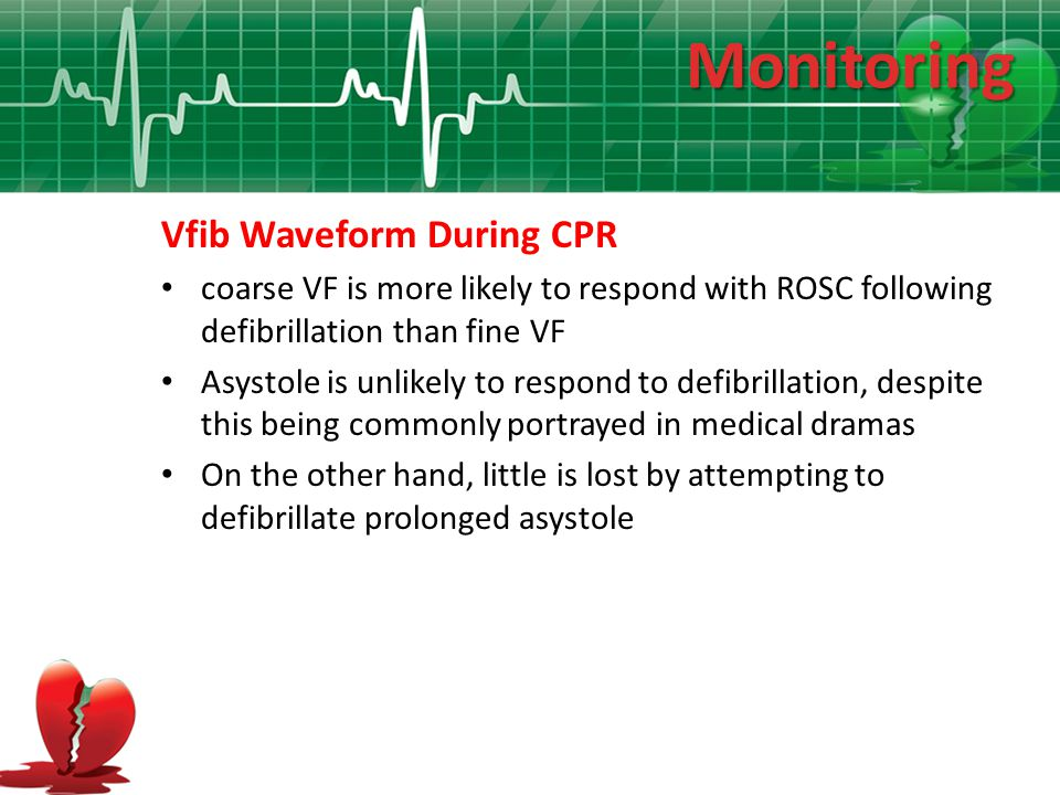 Monitoring Vfib Waveform During CPR