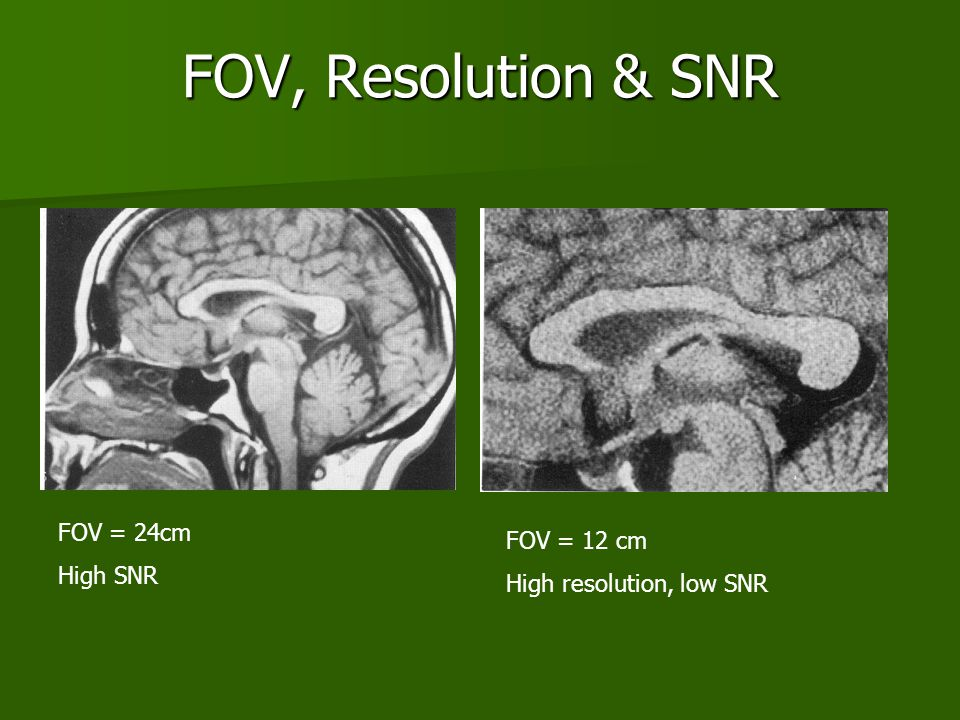FOV, Resolution & SNR FOV = 24cm FOV = 12 cm High SNR