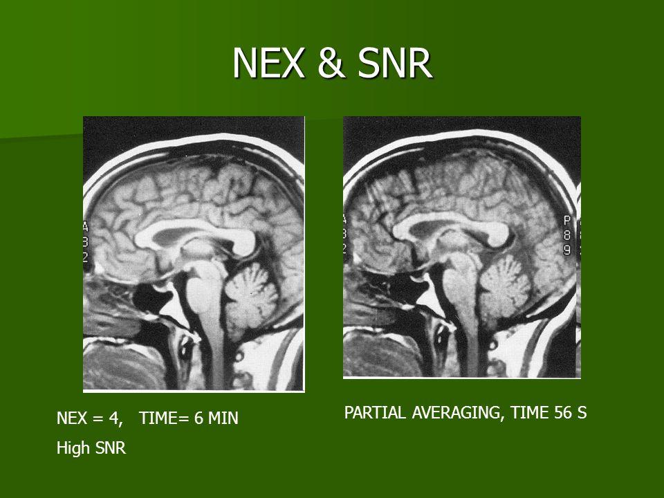 NEX & SNR PARTIAL AVERAGING, TIME 56 S NEX = 4, TIME= 6 MIN High SNR