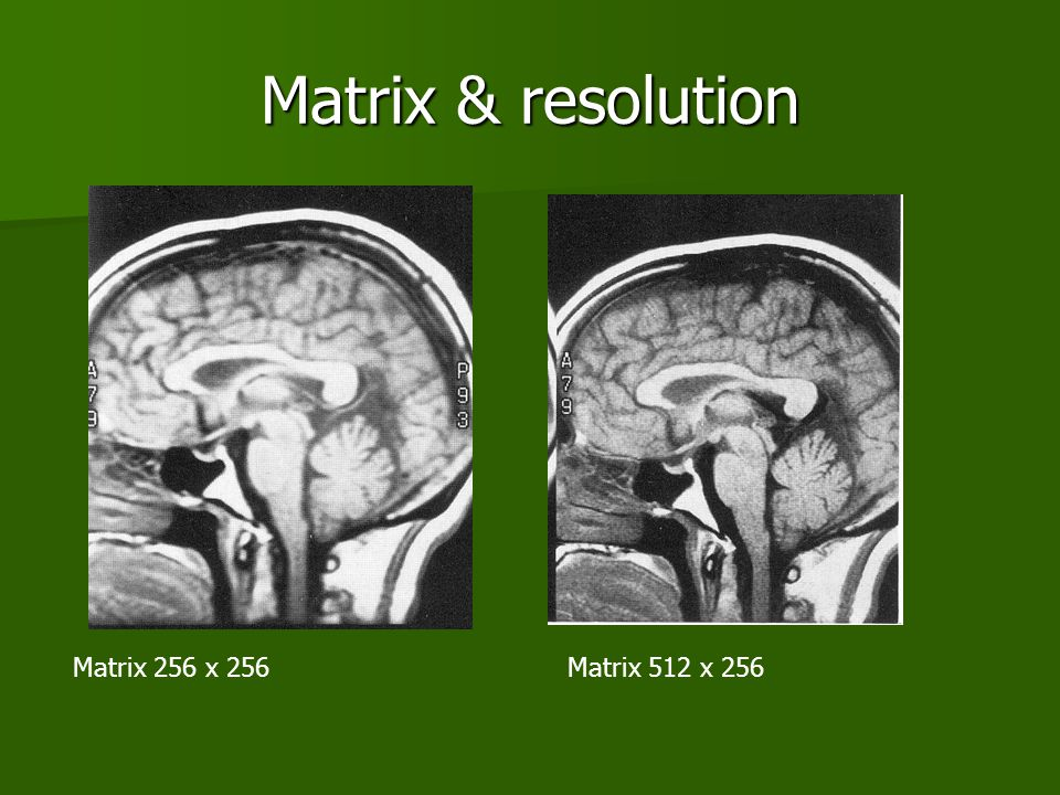 Matrix & resolution Matrix 256 x 256 Matrix 512 x 256