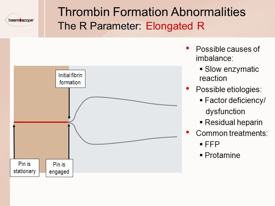 Thrombin Formation Abnormalities The R Parameter: Elongated R