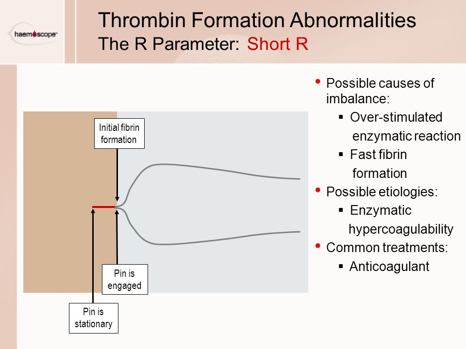 Thrombin Formation Abnormalities The R Parameter: Short R