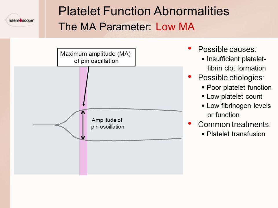 Platelet Function Abnormalities The MA Parameter: Low MA
