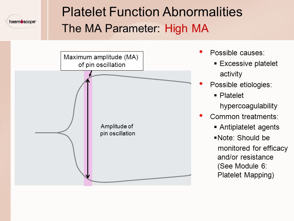 Platelet Function Abnormalities The MA Parameter: High MA
