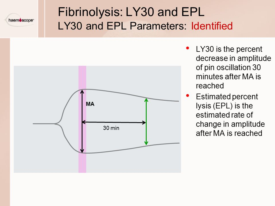 Fibrinolysis: LY30 and EPL LY30 and EPL Parameters: Identified