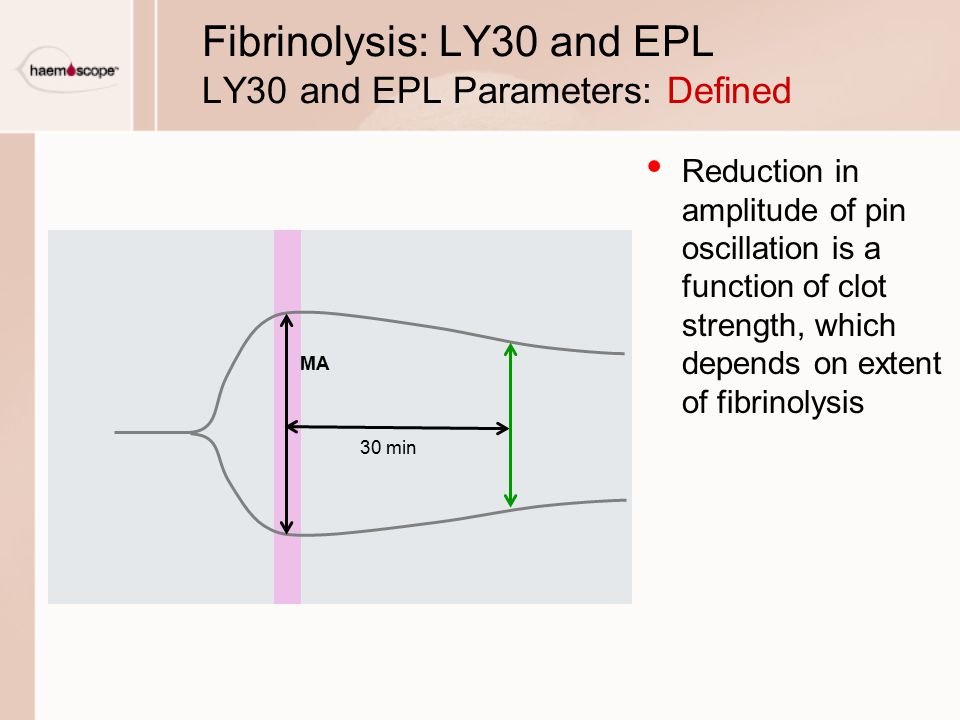 Fibrinolysis: LY30 and EPL LY30 and EPL Parameters: Defined