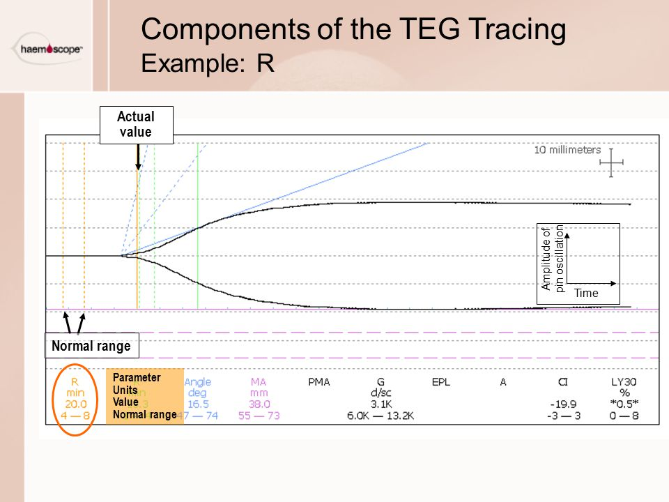 Components of the TEG Tracing Example: R