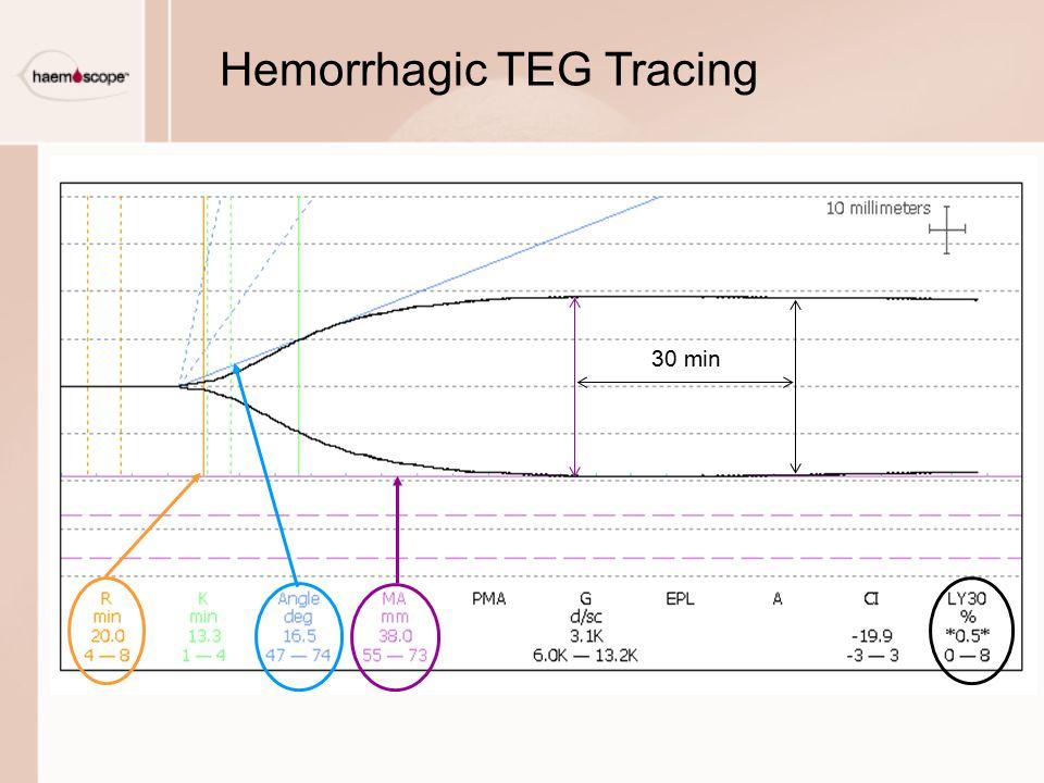 Hemorrhagic TEG Tracing