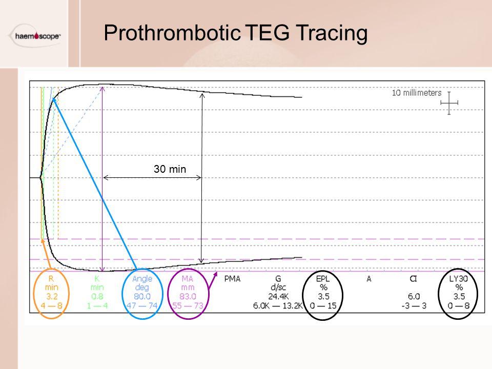 Prothrombotic TEG Tracing