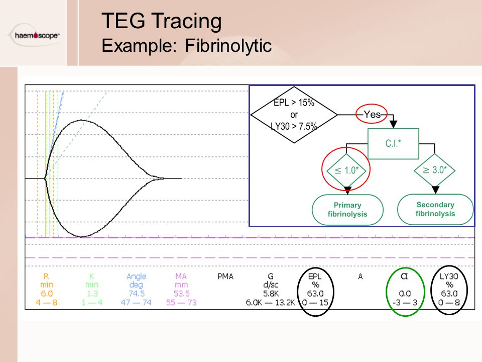TEG Tracing Example: Fibrinolytic