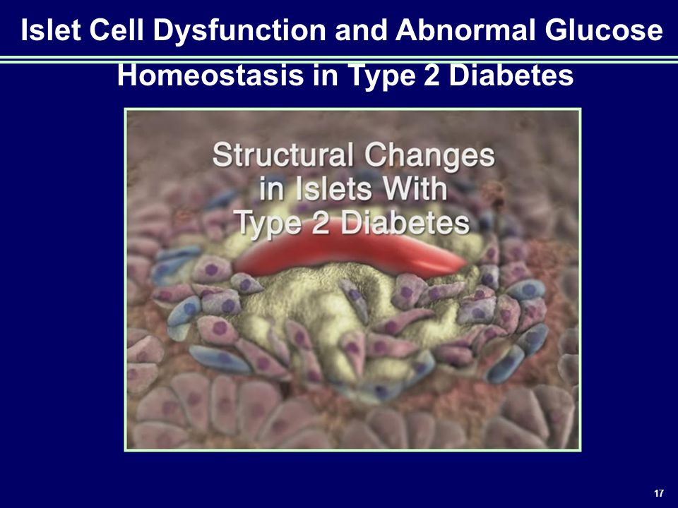 Islet Cell Dysfunction and Abnormal Glucose