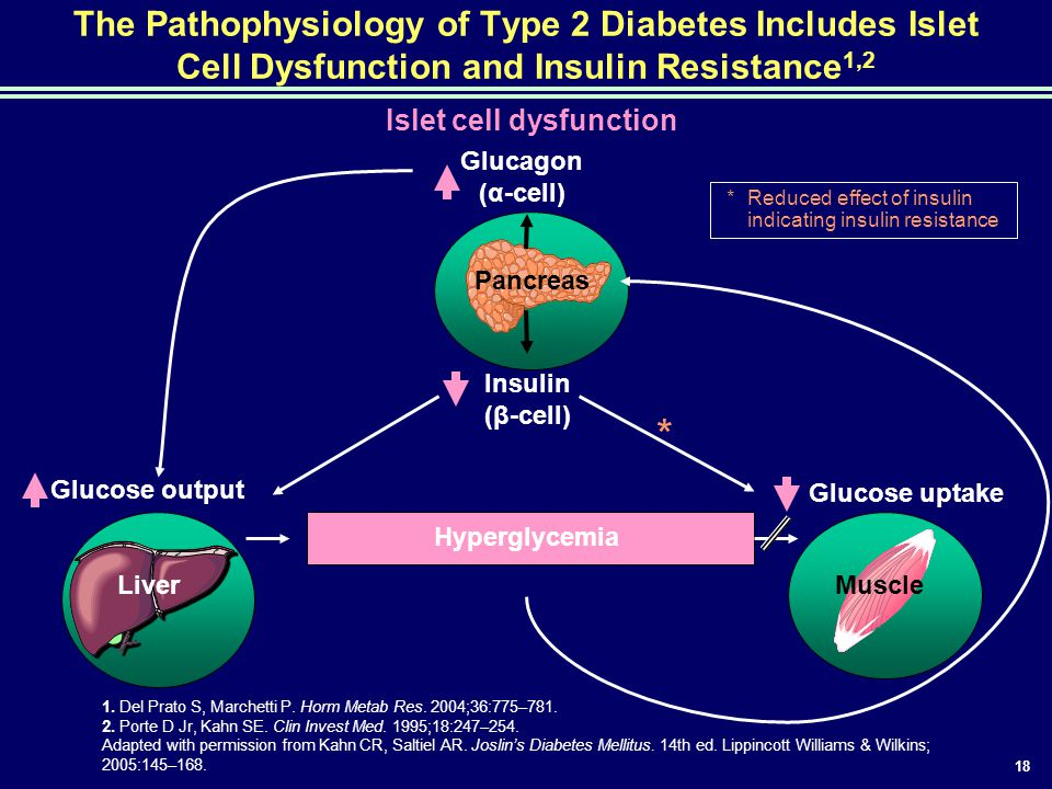 The Pathophysiology of Type 2 Diabetes Includes Islet Cell Dysfunction and Insulin Resistance1,2