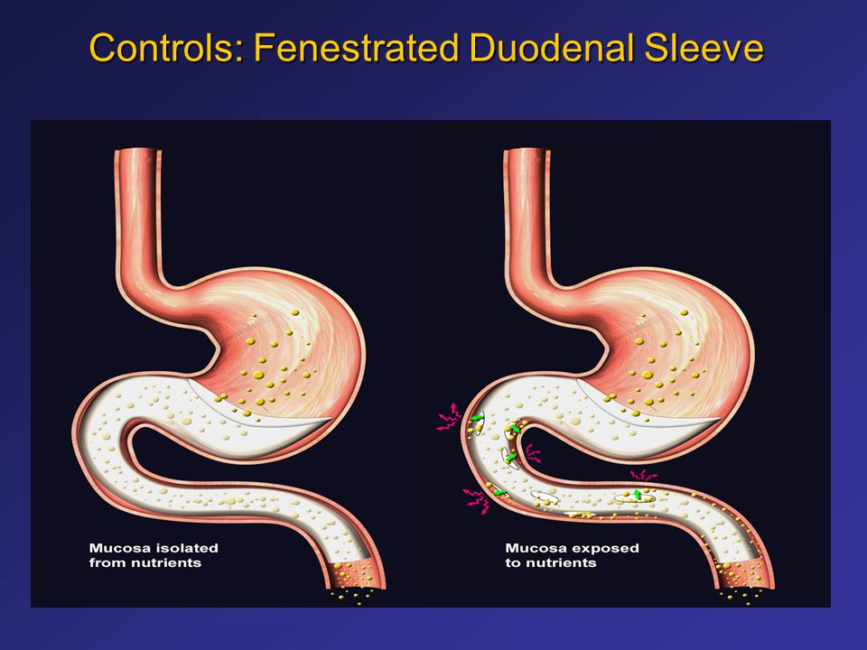 Controls: Fenestrated Duodenal Sleeve