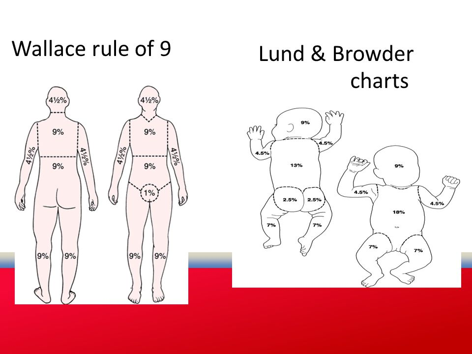 Wallace rule of 9 Lund & Browder charts