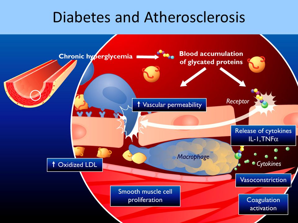 Diabetes and Atherosclerosis