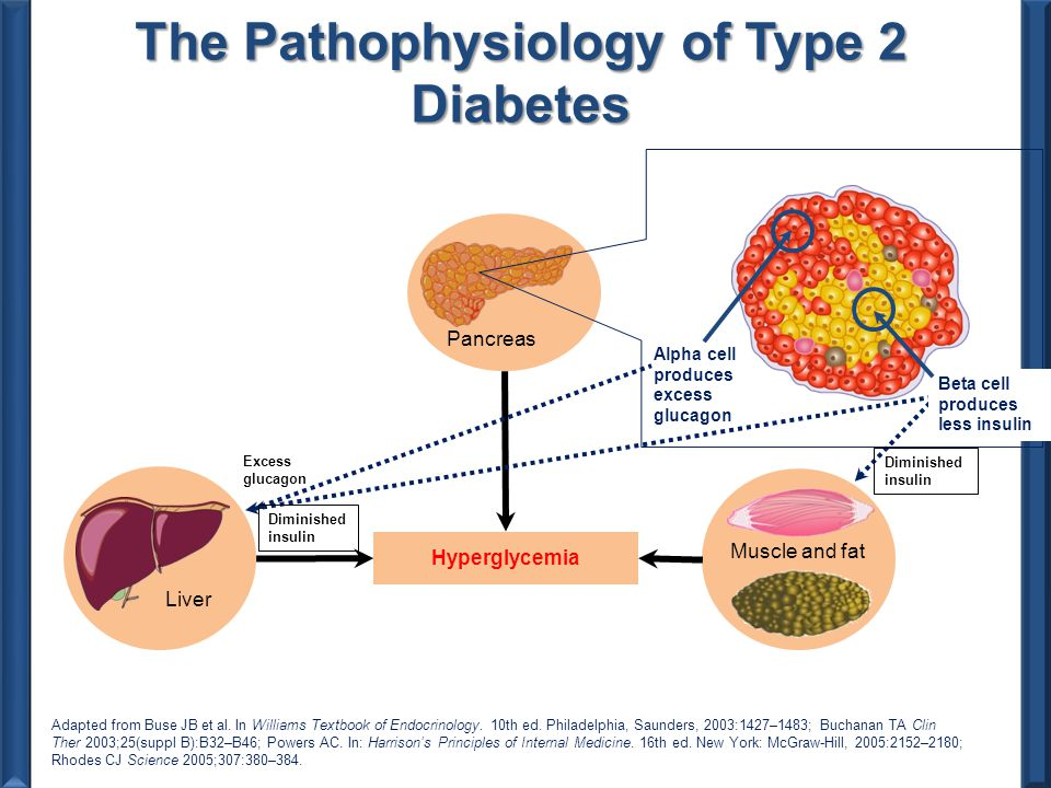 pathophysiology of type 2 diabetes Whilst family history and genetic factors appear to play a significant role in  determining the susceptibility to overt type 2 diabetes, the only certain aspect of  its.