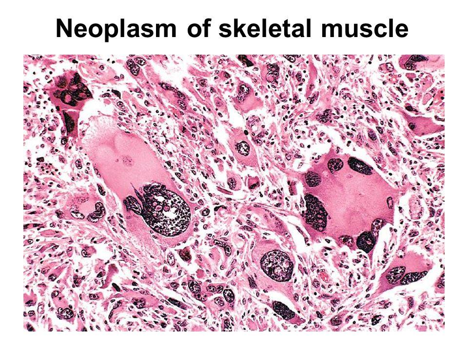 Neoplasm of skeletal muscle