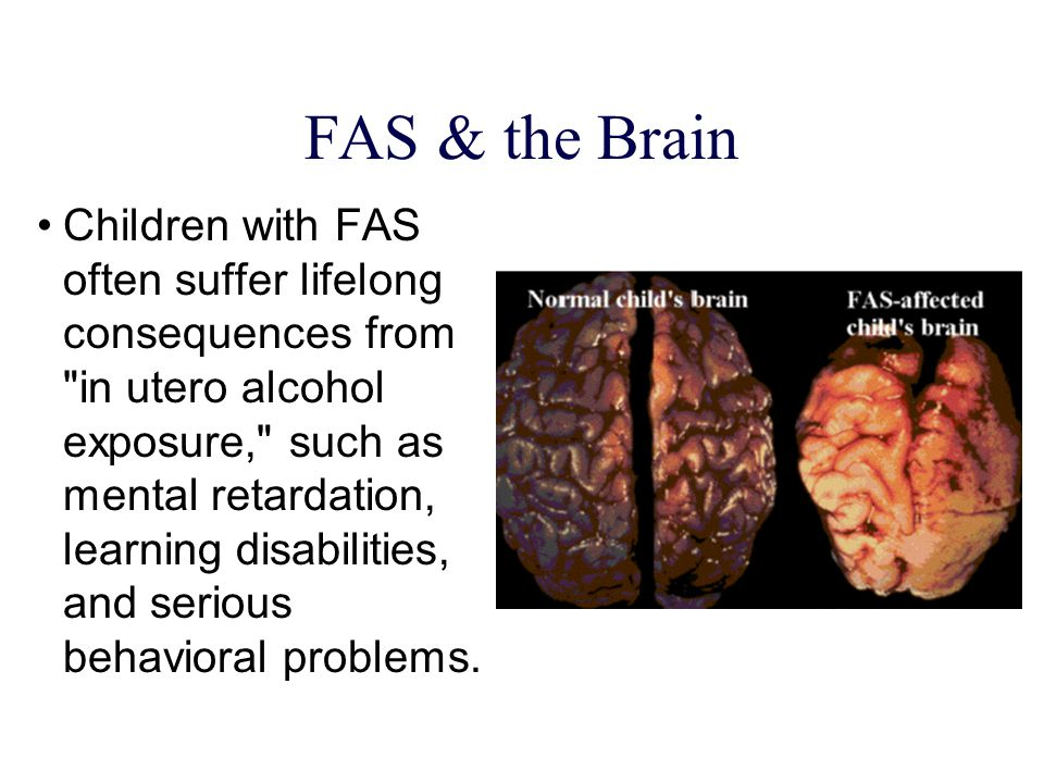FAS & the Brain