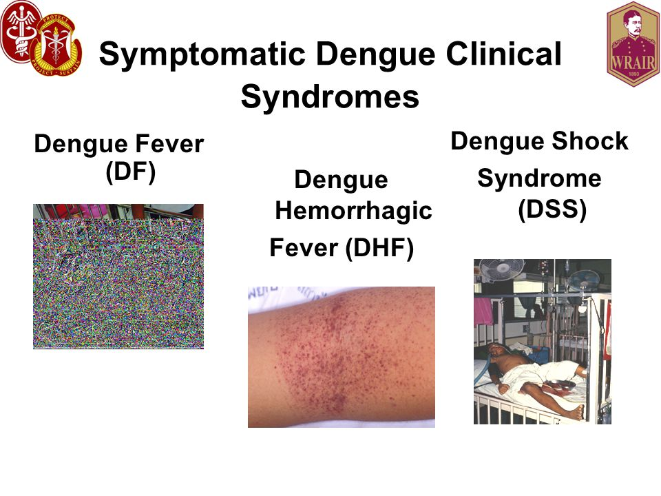 Symptomatic Dengue Clinical Syndromes