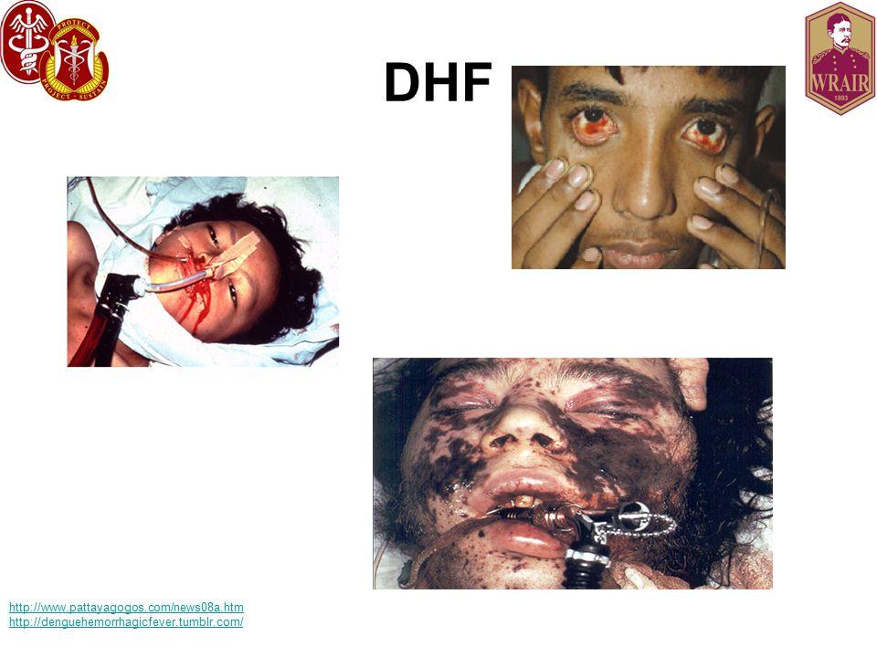 DHF http://www.pattayagogos.com/news08a.htm