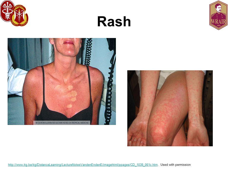 Rash http://www.itg.be/itg/DistanceLearning/LectureNotesVandenEndenE/imagehtml/ppages/CD_1038_061c.htm.