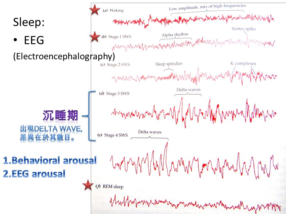 Sleep: EEG 沉睡期 1.Behavioral arousal 2.EEG arousal
