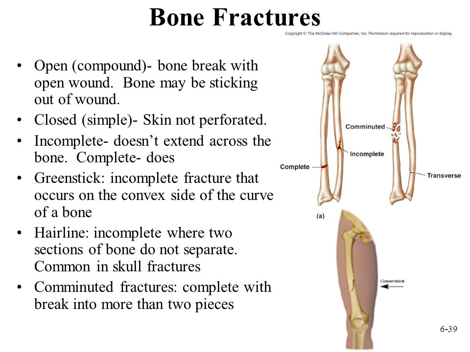 Bone Fractures Open (compound)- bone break with open wound. Bone may be sticking out of wound. Closed (simple)- Skin not perforated.