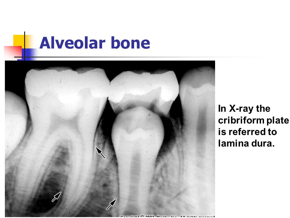 Alveolar bone In X-ray the cribriform plate is referred to lamina dura.