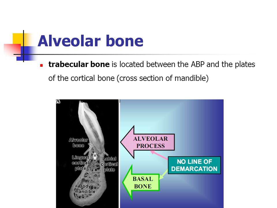 Alveolar bone trabecular bone is located between the ABP and the plates of the cortical bone (cross section of mandible)